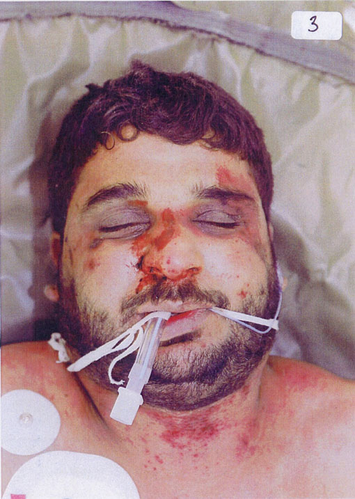 The bloodied and bruised face of Baha Mousa after his death in British military custody in Iraq