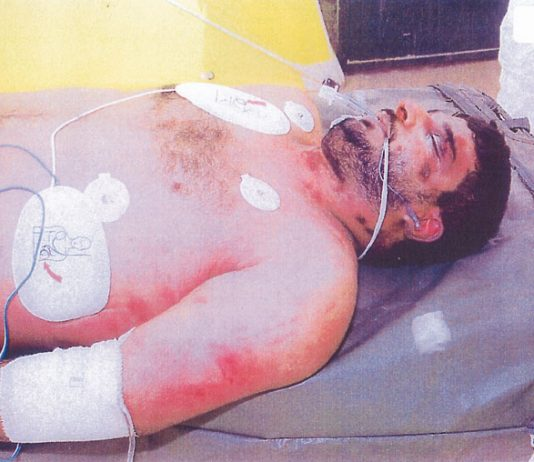 Left side view of upper body of Baha Daoud Salim Musa after his death in British military custody in Iraq in September 2003