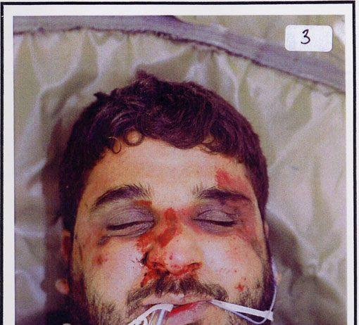The badly beaten face of Baha Mousa