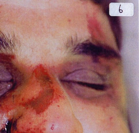 The battered face of Baha Mousa showing some of his injuries