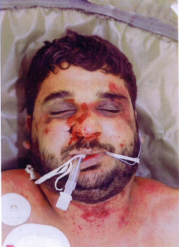 A very badly beaten Baha Mousa, an Iraqi hotel worker, tortured by British soldiers in Iraq