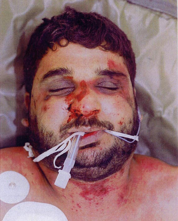 The battered body of Baha Mousa after he was seized by British forces in southern Iraq in September 2003