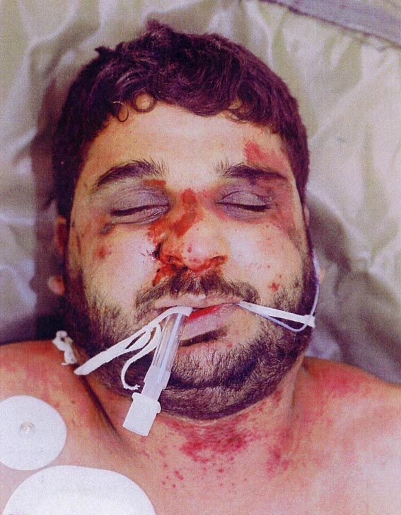 Baha Mousa after UK soldiers tortured him – Dr Keilloh did his best to cover the torture up