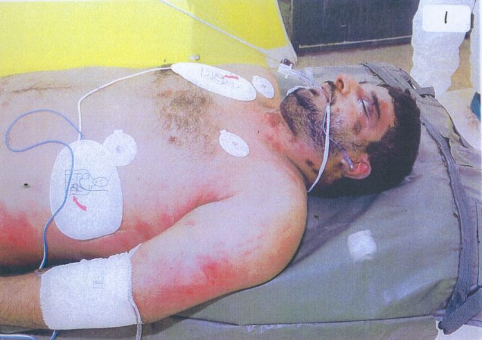 The body of Baha Mousa showing some of the 93 injuries that doctor Keilloh 'did not notice' after being beaten by British troops