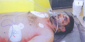 The body of Iraqi hotel worker, Baha Mousa after being beaten to death by British troops in Basra in September 2003